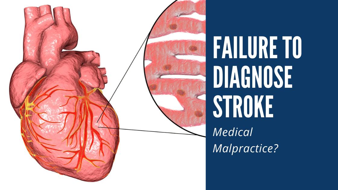 failure to diagnose stroke med mal orlando florida